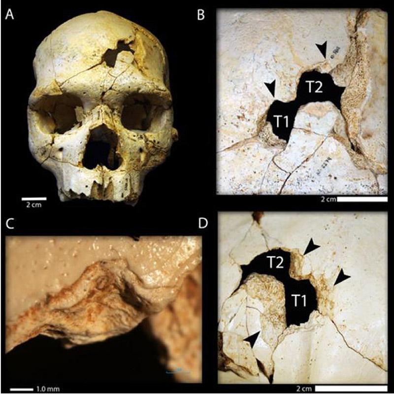 جای ضربه بر جمجمه یک انسان اولیه، آیا یک قتل بوده یا یک حادثه هنگام شکار؟